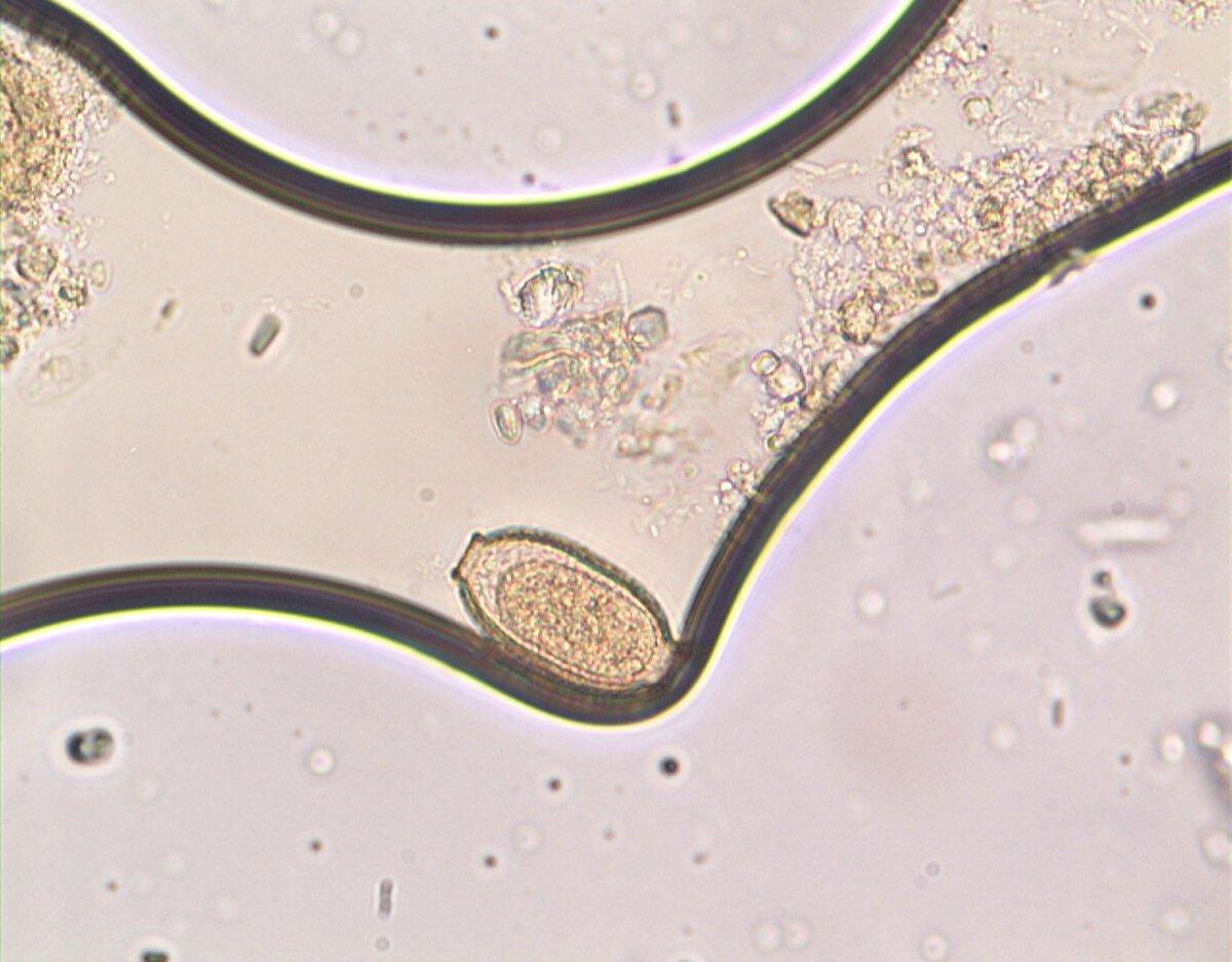 Capillaria obsignata preparat mikroskopowy